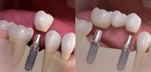 Один або декілька зубів відсутні