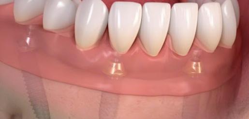 Відсутні всі зуби